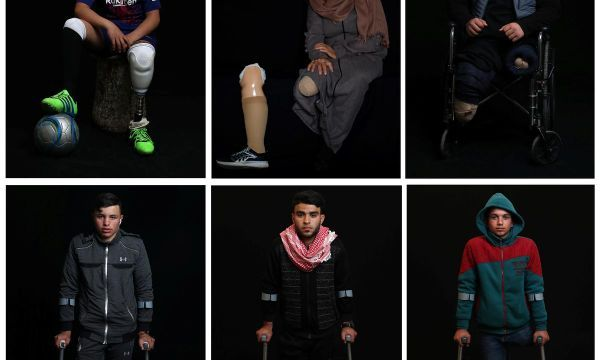 Artificial limbs change lives for wounded Gaza protesters